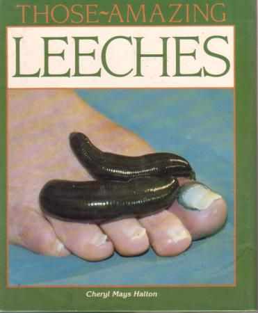 THOSE AMAZING LEECHES